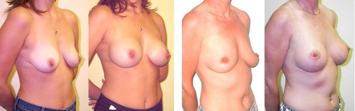 four examples of a successfully completed boob job in Birmingham