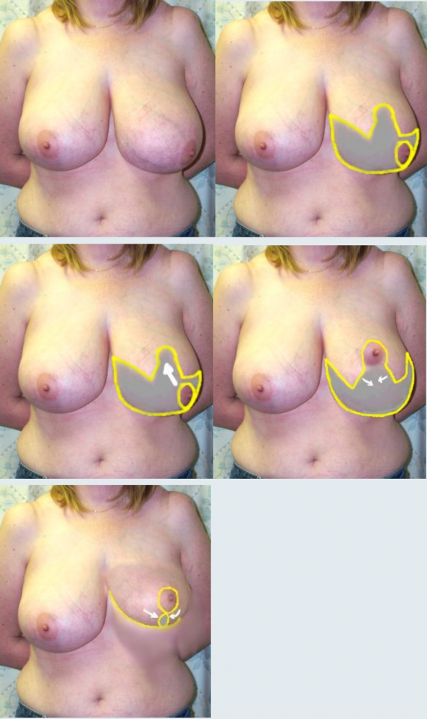 descriptive image of the process involved within breast reduction surgeries by Guy Sterne