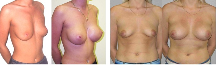 more images of breast surgery with Guy Sterne cosmetic surgeon