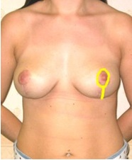 front image of how breast uplift procedures are carried out via the nipple. From Guy Sterne Birmingham