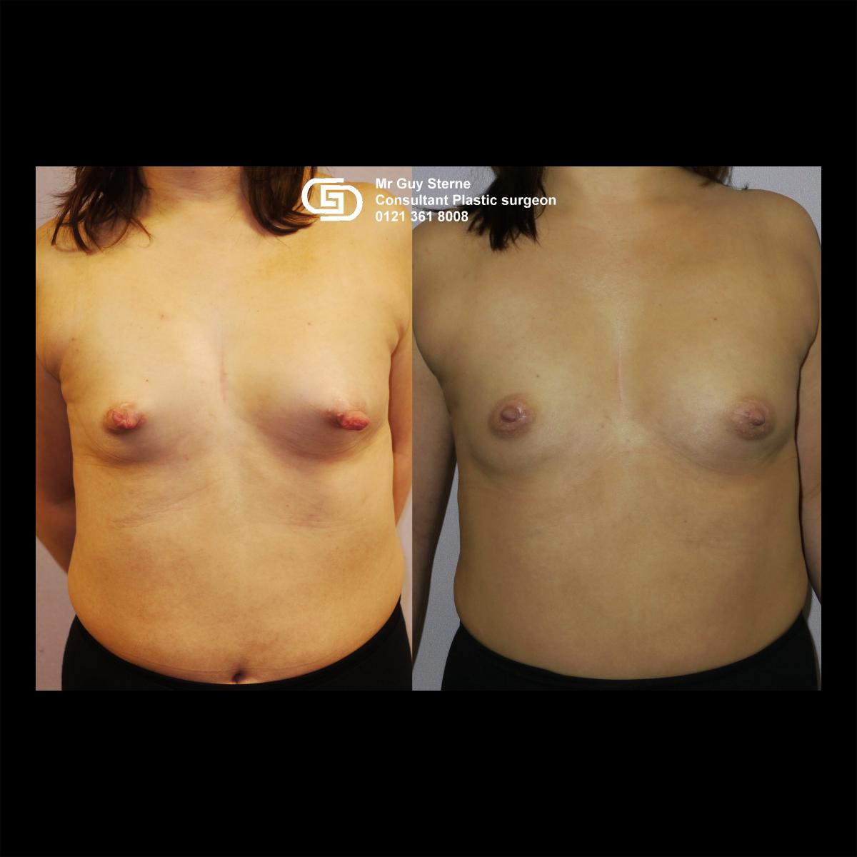 Inverted Nipple Correction