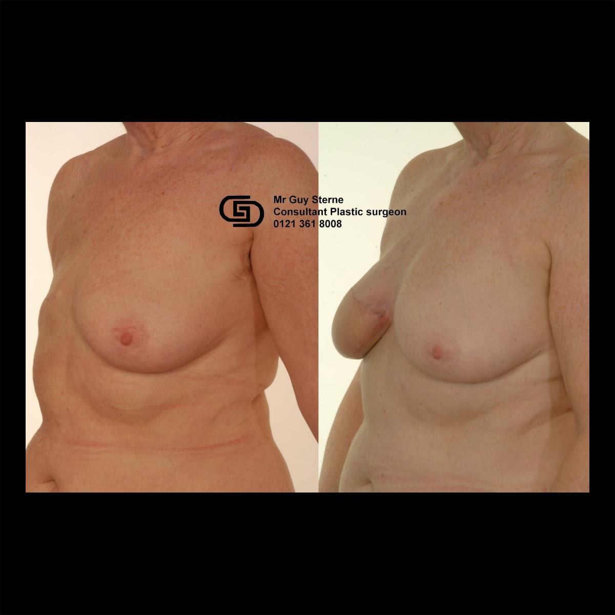 Latissimus Dorsi Breast Reconstruction