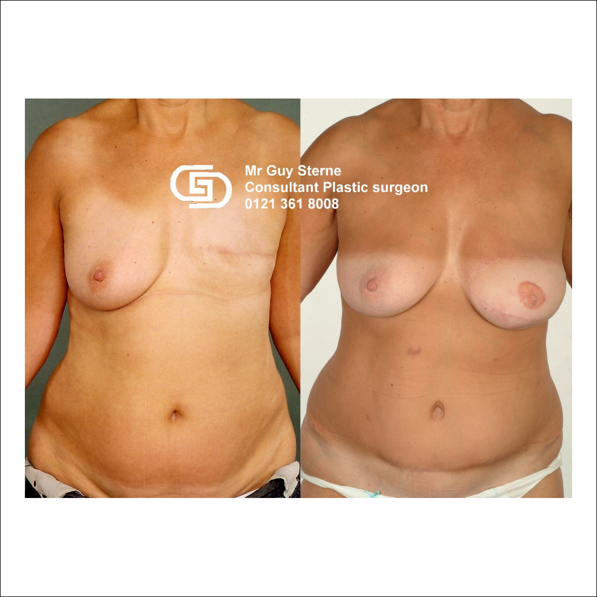 TRAM and DIEP breast Reconstruction