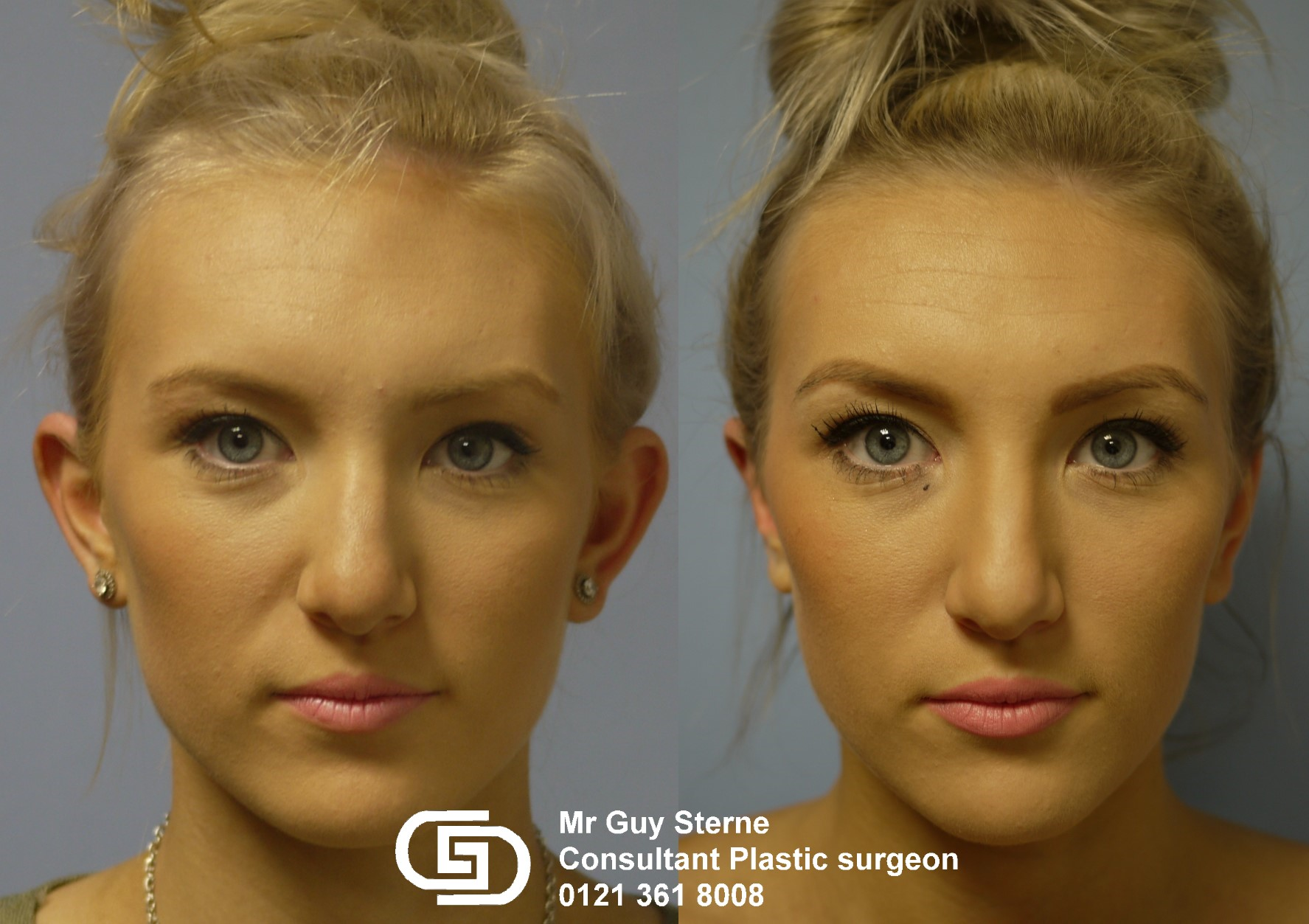 for nhs Otoplasty adults on