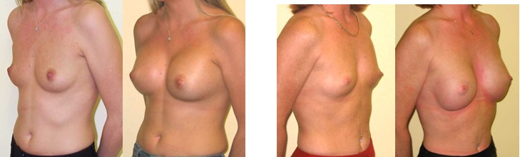 Enlarging breasts with specialist surgeries from Guy Sterne Birmingham