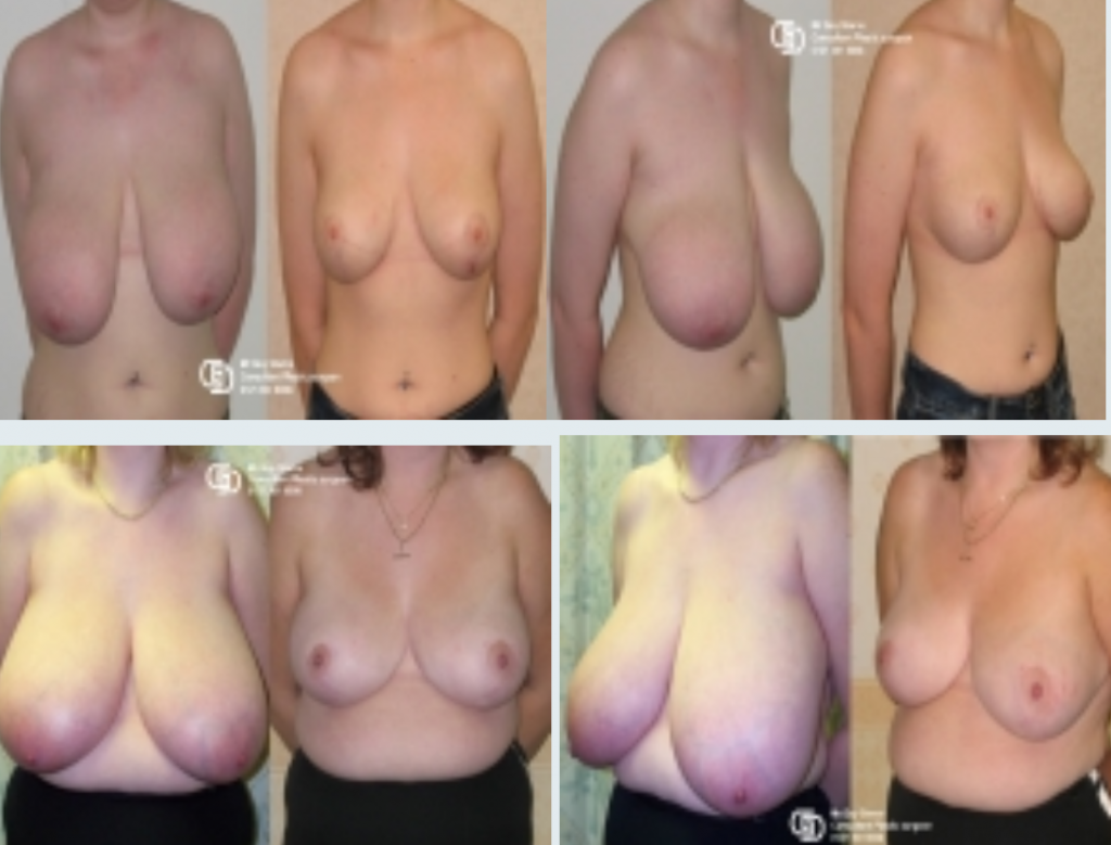 before and after images of breast reduction surgery with Guy Sterne