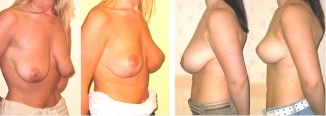before and after shots of breast uplifts with Guy Sterne Birmingham