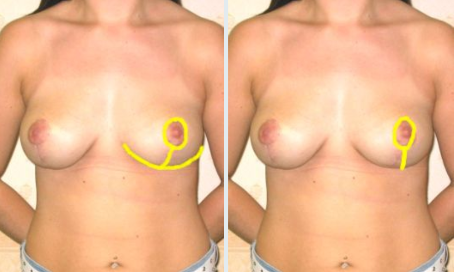 incision scars image of both anchor and vertical for cosmetic breast reduction. Guy Sterne