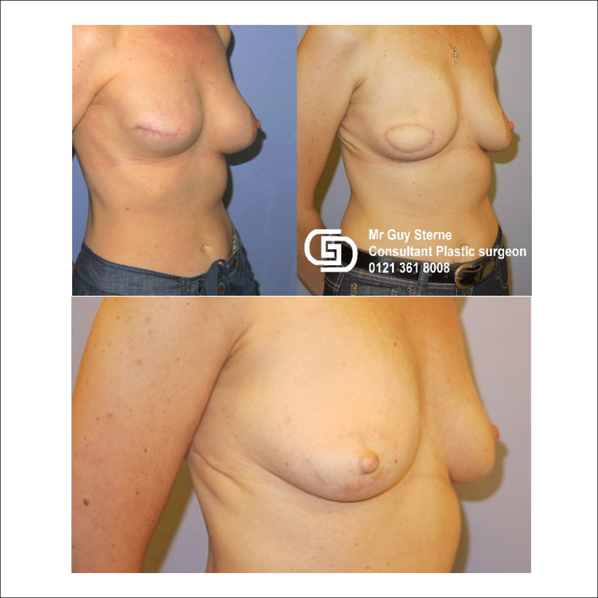 Revision of Breast Reconstruction